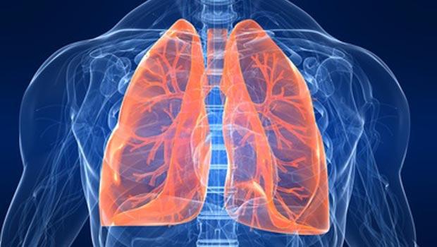 Akciğer Kanseri Nedir ? Tanısı & Tedavisi